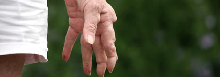 Help for Arthritis Sufferers in the Mount Maunganui Area
